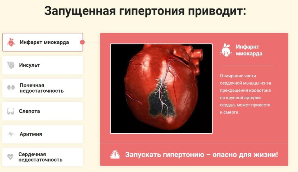 Кардиософт (Cardiosoft) от гипертонии