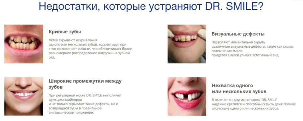 Виниры для зубов Dr. Smile (Доктор Смайл) пому подходят