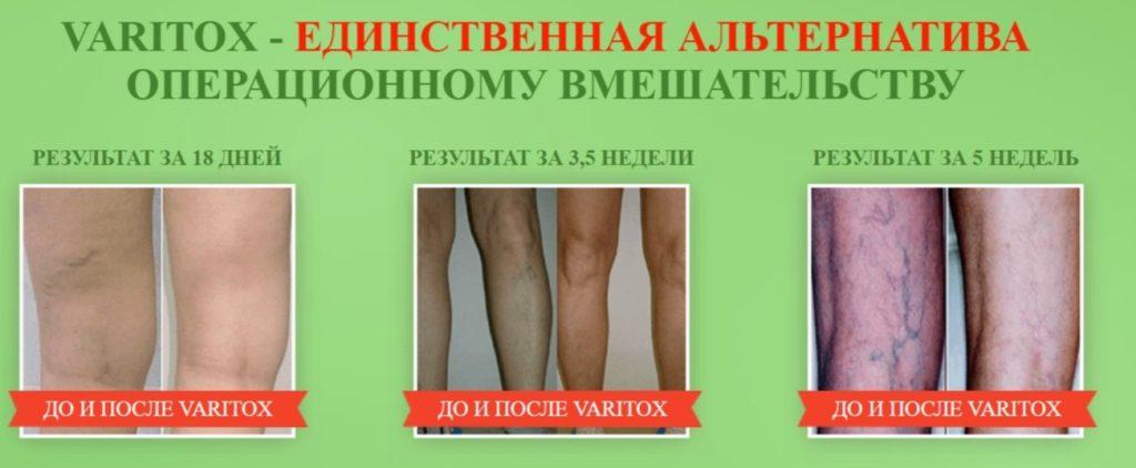 Крем-гель Варитокс (Varitox) от варикоза альтернатива